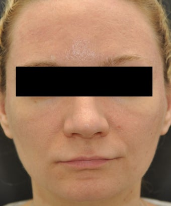Facial Aging Grooves after 955243