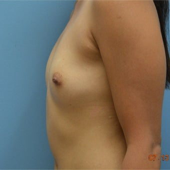 25-34 year old woman treated with Breast Augmentation before 2634521