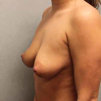 18-24 year old woman treated with Breast Augmentation before 3624681