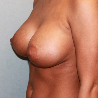 18-24 year old woman treated with Breast Augmentation after 3624681