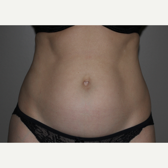 45-54 year old woman treated with SculpSure before 3706615