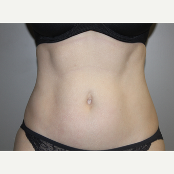45-54 year old woman treated with SculpSure after 3706615