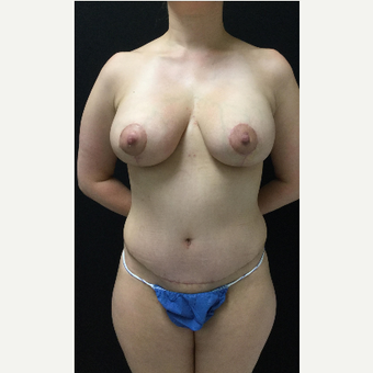 35-44 year old woman treated with Breast Lift with Implants after 3219372