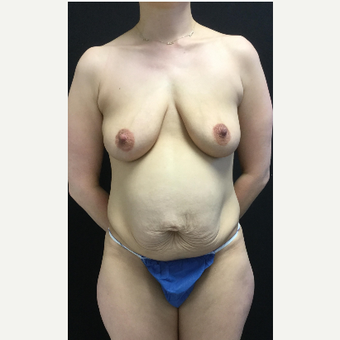 35-44 year old woman treated with Breast Lift with Implants before 3219372