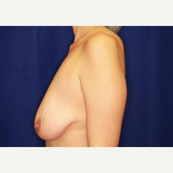 35-44 year old woman treated with Breast Lift with Implants before 3027957