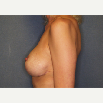 35-44 year old woman treated with Breast Lift with Implants after 3027957