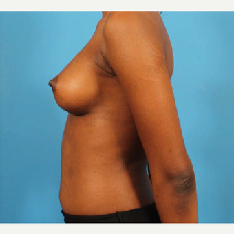 18-24 year old woman treated with Breast Implants after 3244599
