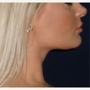 25-34 year old woman treated with Chin Liposuction after 2315373