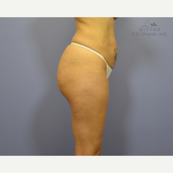 25-34 year old woman treated with Brazilian Butt Lift Revision before 3415913