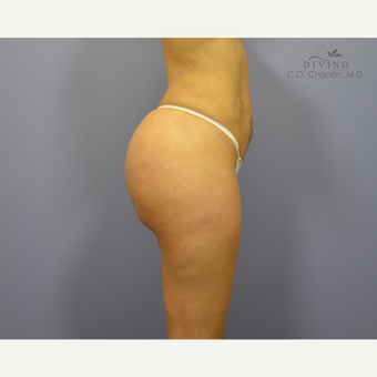 25-34 year old woman treated with Brazilian Butt Lift Revision after 3415913