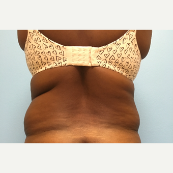 47 year old woman treated with Liposuction of the abdomen, waist, flanks, and back bra rolls. before 2929657