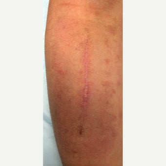 25-34 year old man treated with Scar Removal after 2551315