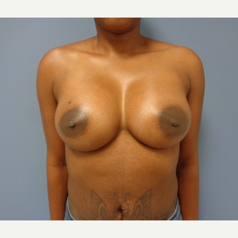 25-34 year old woman treated with Breast Augmentation after 3493460