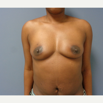 25-34 year old woman treated with Breast Augmentation before 3493460