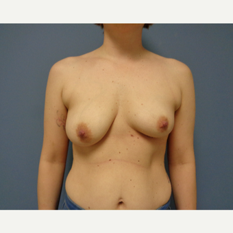 25-34 year old woman treated with Breast Lift with Implants before 3737978