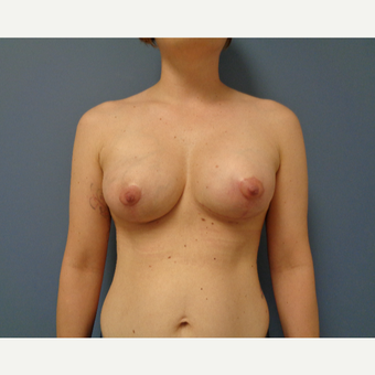 25-34 year old woman treated with Breast Lift with Implants after 3737978