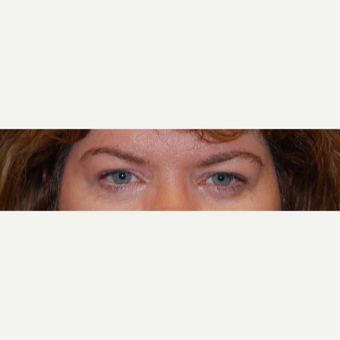 45-54 year old woman treated with Eyelid Surgery before 3042901