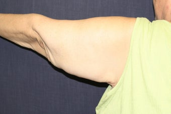 Arm Lift (Brachioplasty) after 508323