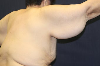 Arm Lift (Brachioplasty) 508323