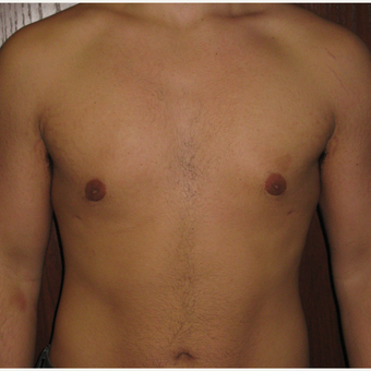 18-24 year old man treated with Male Breast Reduction after 3377900