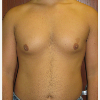 18-24 year old man treated with Male Breast Reduction before 3377900