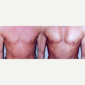25-34 year old man treated with Pec Implants before 3659558