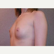 18-24 year old woman treated with Breast Implants before 3108990