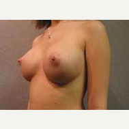 18-24 year old woman treated with Breast Implants after 3108990