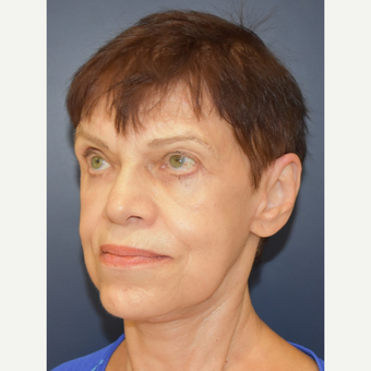 65-74 year old woman treated with Facelift after 3449007