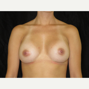 25-34 year old woman treated with Breast Augmentation after 3318725