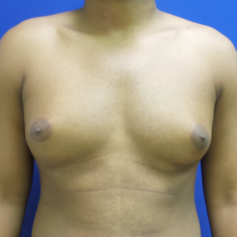 Male Breast Reduction before 3565801