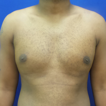 Male Breast Reduction after 3565801