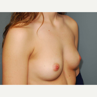 26 y/o Inframammary Sub Muscular Breast Augmentation before 3065992
