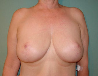 Breast Reduction after 865157
