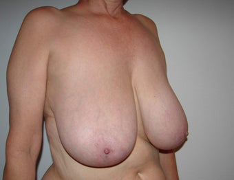 Breast Reduction 865157
