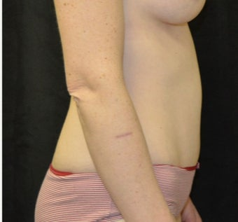 35-44 year old woman treated with Tummy Tuck after 3182001