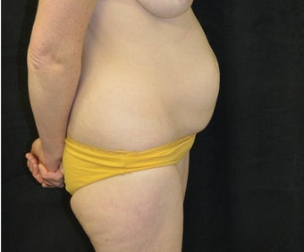 35-44 year old woman treated with Tummy Tuck before 3182001