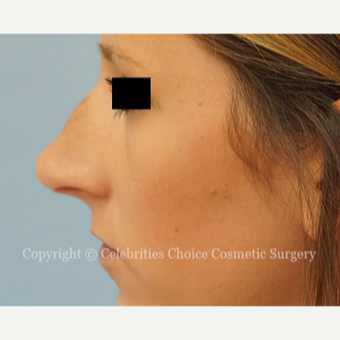 25-34 year old woman treated with Rhinoplasty before 3337794