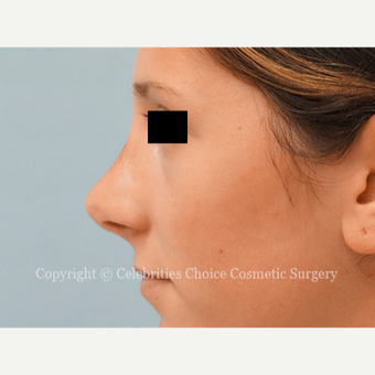 25-34 year old woman treated with Rhinoplasty after 3337794