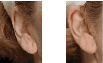 Restylane for Earlobe Rejuvenation before 1030578