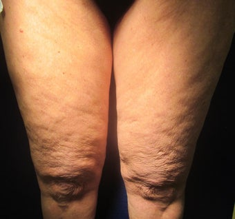 70 Year Old Female Treated for Cellulite before 1198783
