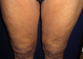 70 Year Old Female Treated for Cellulite after 1198783