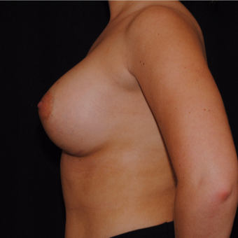 18-24 year old woman treated with Breast Implants after 3692219