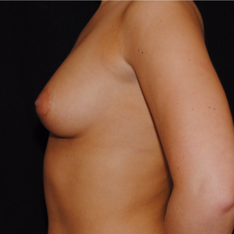 18-24 year old woman treated with Breast Implants before 3692219