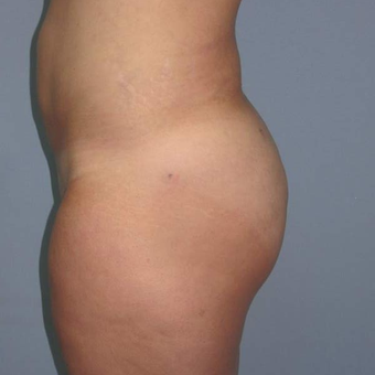 35-44 year old woman treated with Brazilian Butt Lift after 3123164