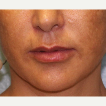 35-44 year old woman treated with Lip Augmentation after 3460106