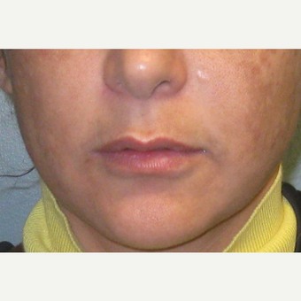35-44 year old woman treated with Lip Augmentation before 3460106
