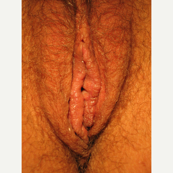 25-34 year old woman treated with Labiaplasty after 3693959