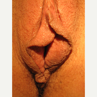 25-34 year old woman treated with Labiaplasty before 3693959