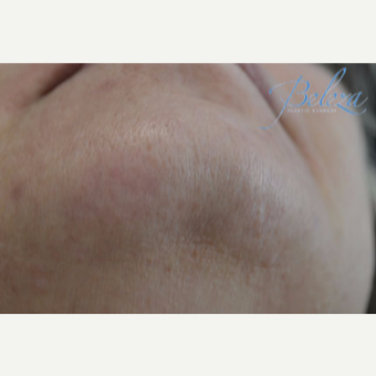 45-54 year old woman treated with Laser Hair Removal